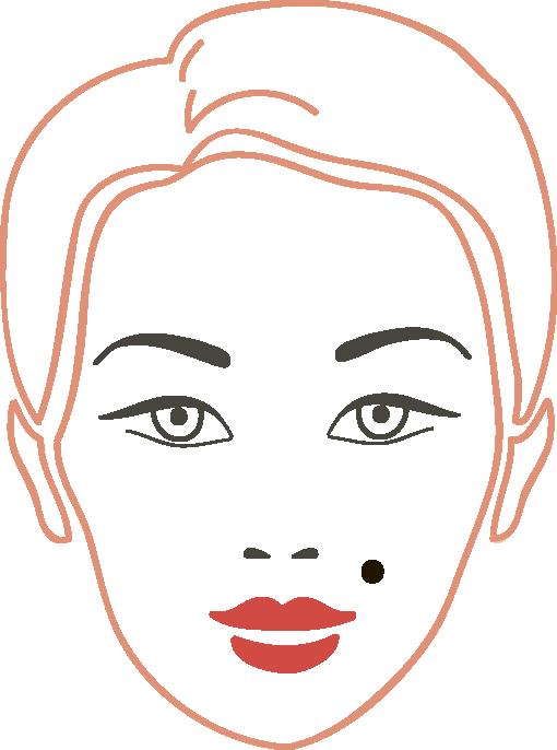 Удаление новообразований кожи и сосудов